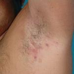 Hidradenitis Supurativa o Golondrinos, una enfermedad que afecta la autoestima será tratada en Barranquilla