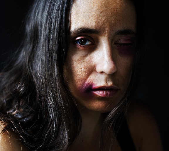 Abused woman