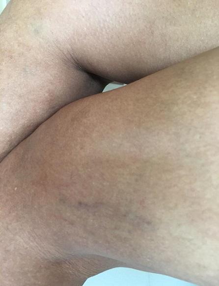 Las mujeres sufren de vena varicosa 4 veces más que los hombres