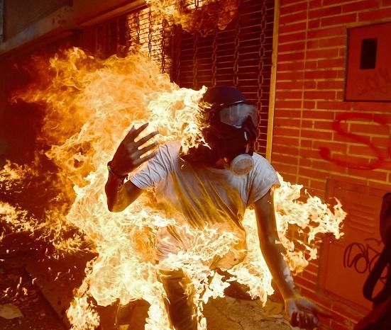 quemados-en-vzla