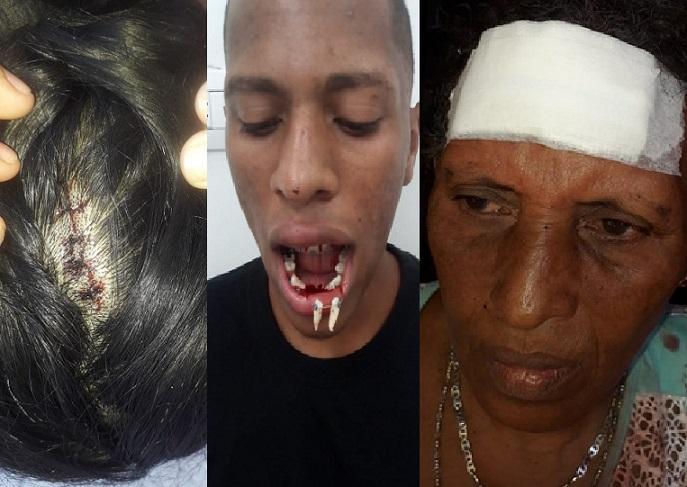Denuncian abuso de autoridad en el barrio Santa María al suroccidente de Barranquilla